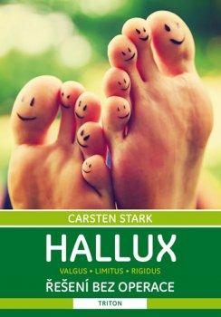 Hallux - Řešení bez operace