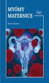 Myómy maternice